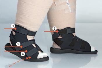 lymfatický sandál